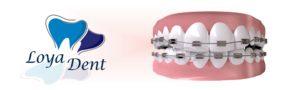 loyadent-ortodonti-tedavisi